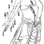 Acupuncture For POTS